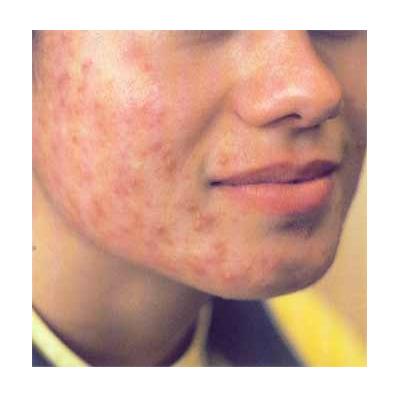 Acne BIOPTRON dermatologique