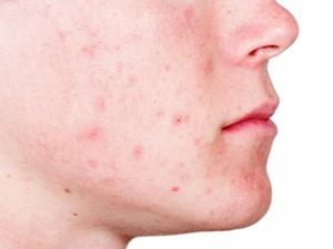 Traitez l'acne avec la lampe BIOPTRON
